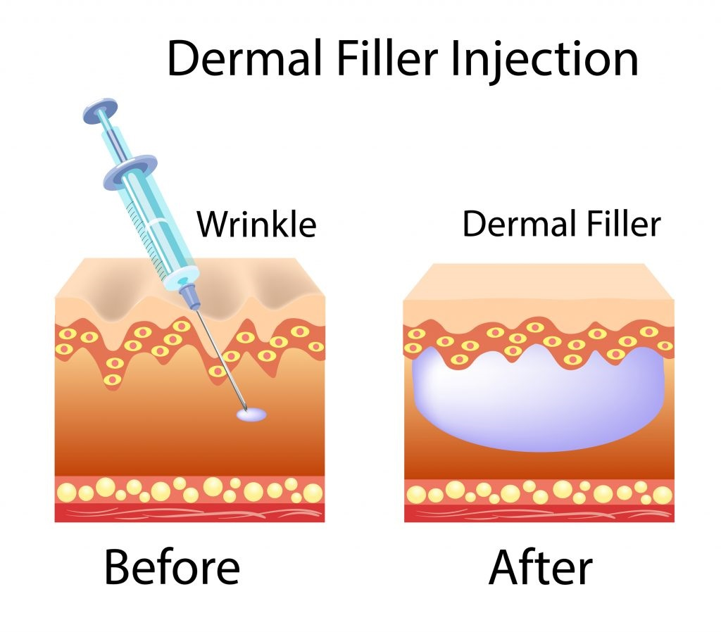 skin tightening - dermal filler