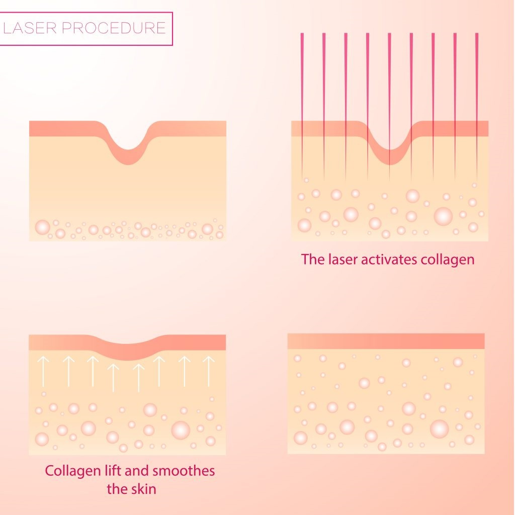 skin tightening - laser procedure