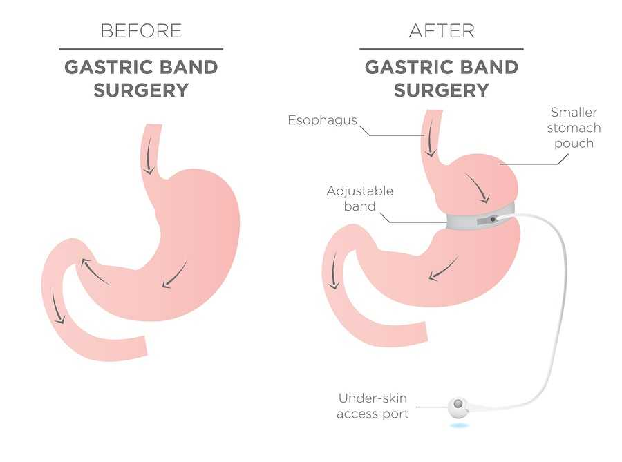 gastric band surgery before and after