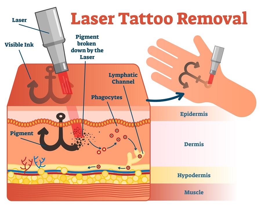 laser tattoo removal procedure