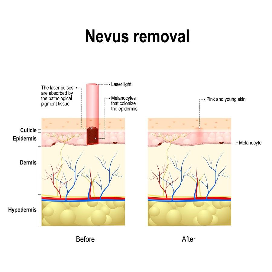 mole-removal-nevus