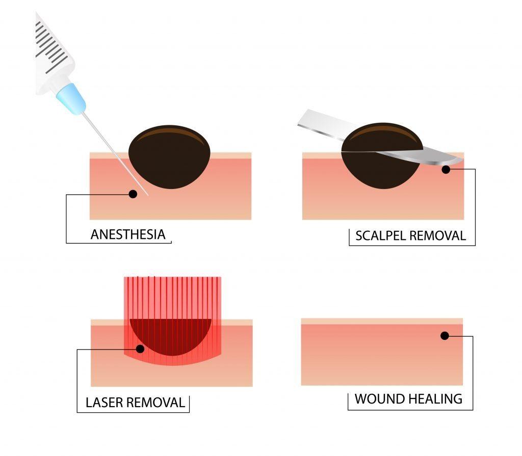 mole removal procedue