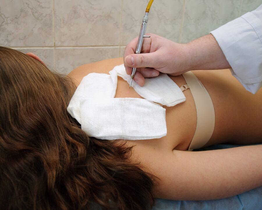 Mole Removal Procedure